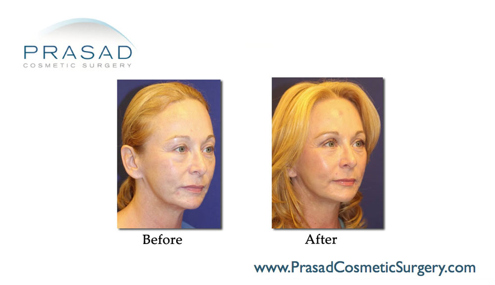 before and after facelift surgery on 50 yrs old female patient left quarter view