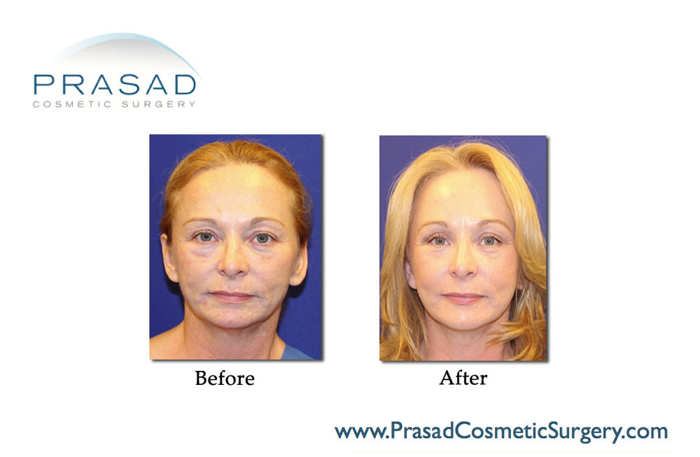 Facelift Patient Before and After - front view