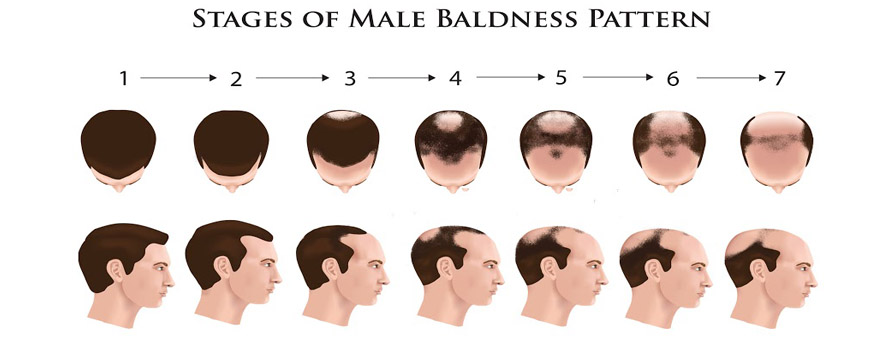 hair loss stages of men illustration