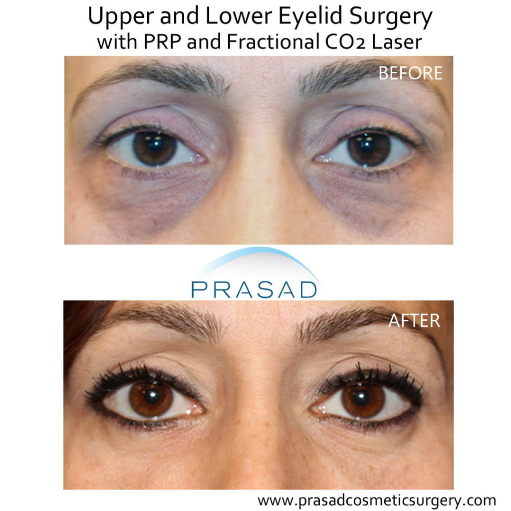 Before and after lower eyelid surgery with PRP and laser treatment on female patient