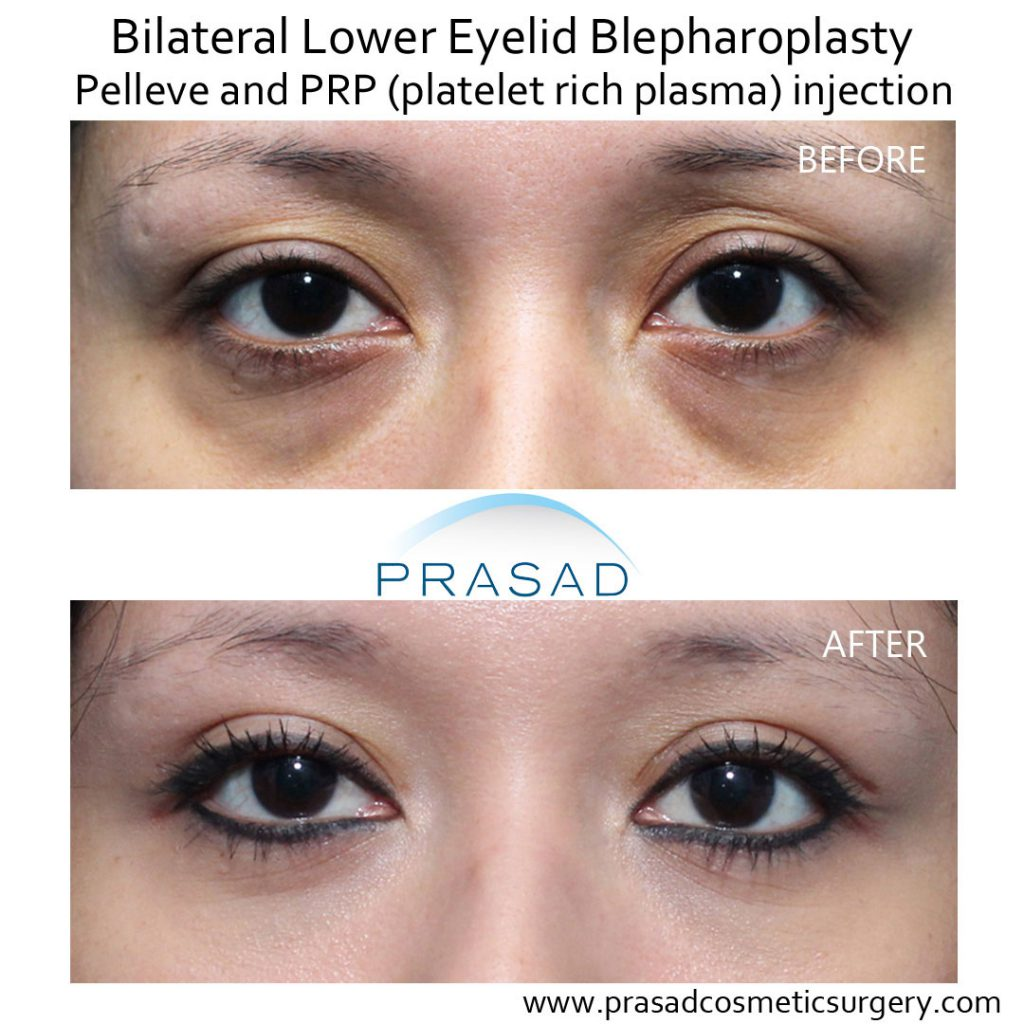 lower eyelid surgery with Pelleve and PRP before and after treatment