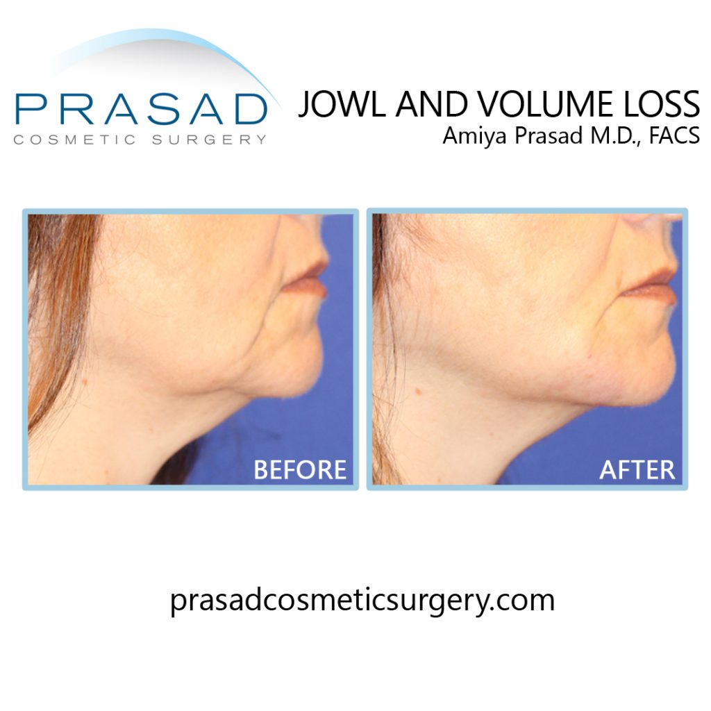 before and after lower face enhancement of mandibular notch and mesolabial fold