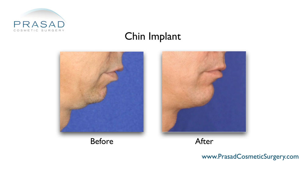 chin implant surgery in male before and after surgery - right side view
