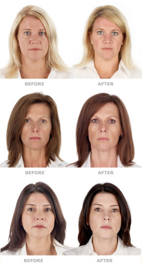 platelet-rich plasma models before and after treatment