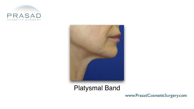 female with platysmal band