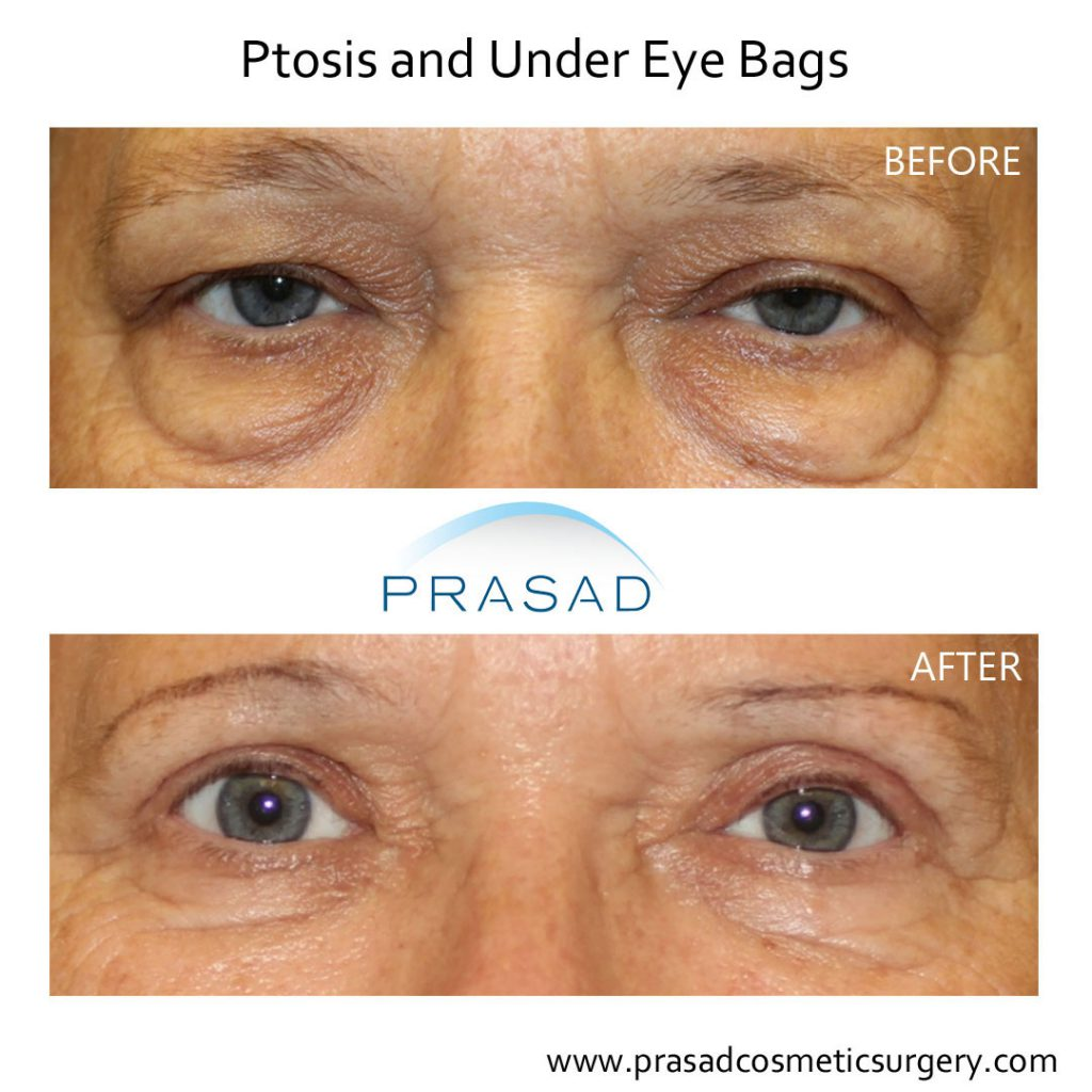 cosmetic surgery for puffy eyes before and after recovery - older female patient