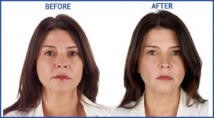Before and After Selphyl wrinkle treatment on female model
