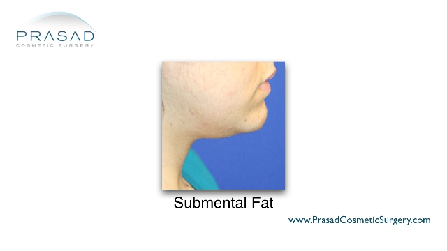 female with submental fat - good candidate for Kybella™