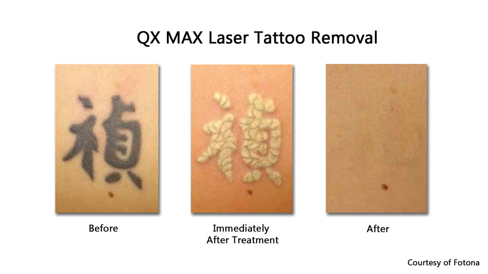black tattoo laser removal before, immediately after treatment and after healing