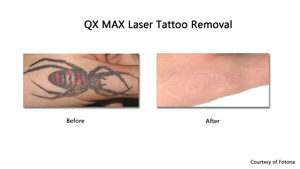 before and after laser tattoo removal healing of multi-colored tattoo