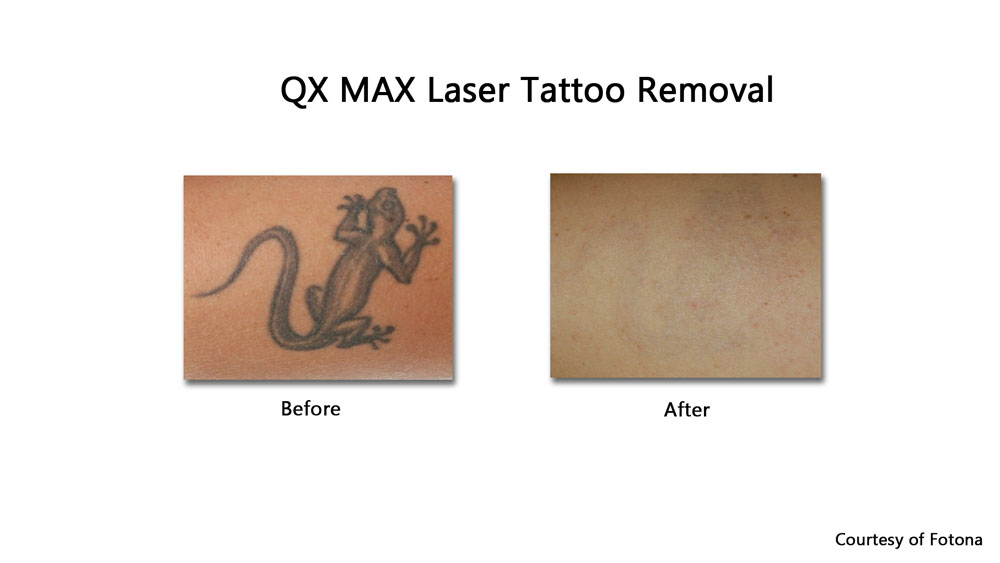 laser tattoo removal results using the Q-Switch l before and after results