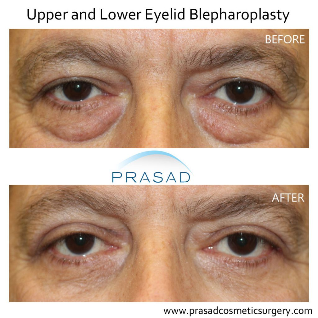 Before and after Upper and Lower Eyelid Surgery on male patient