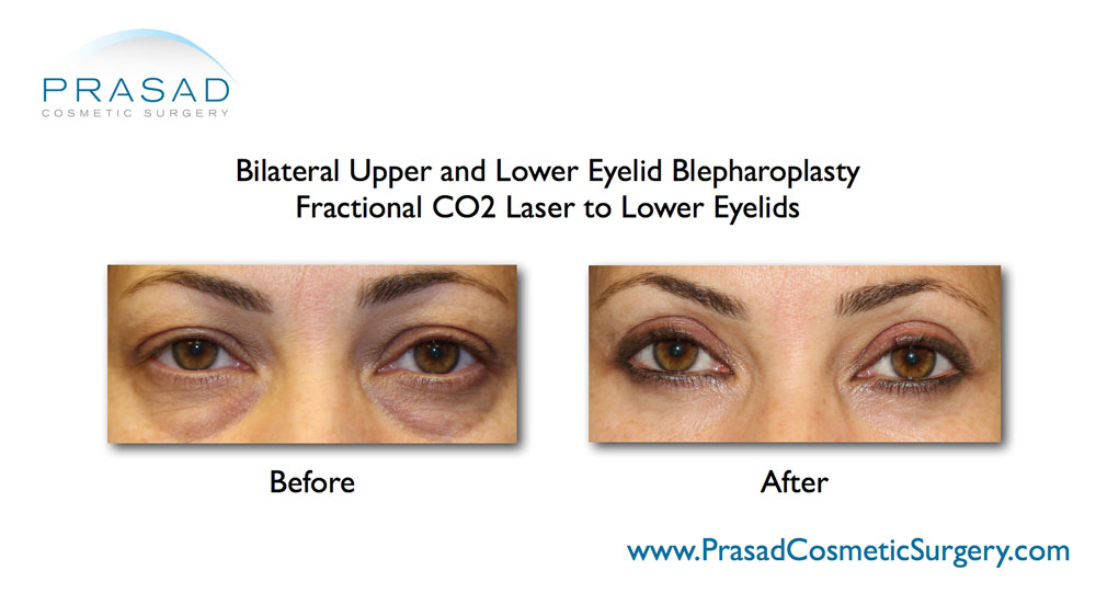 full recovery after upper and lower eyelid surgery