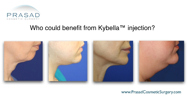 different kind of chin fat or neck problems