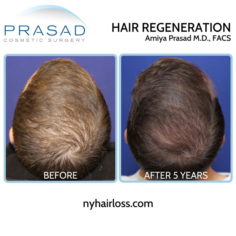5 year results from Hair Regeneration male 20s top of scalp view with relevant information performed by Dr Amiya Prasad