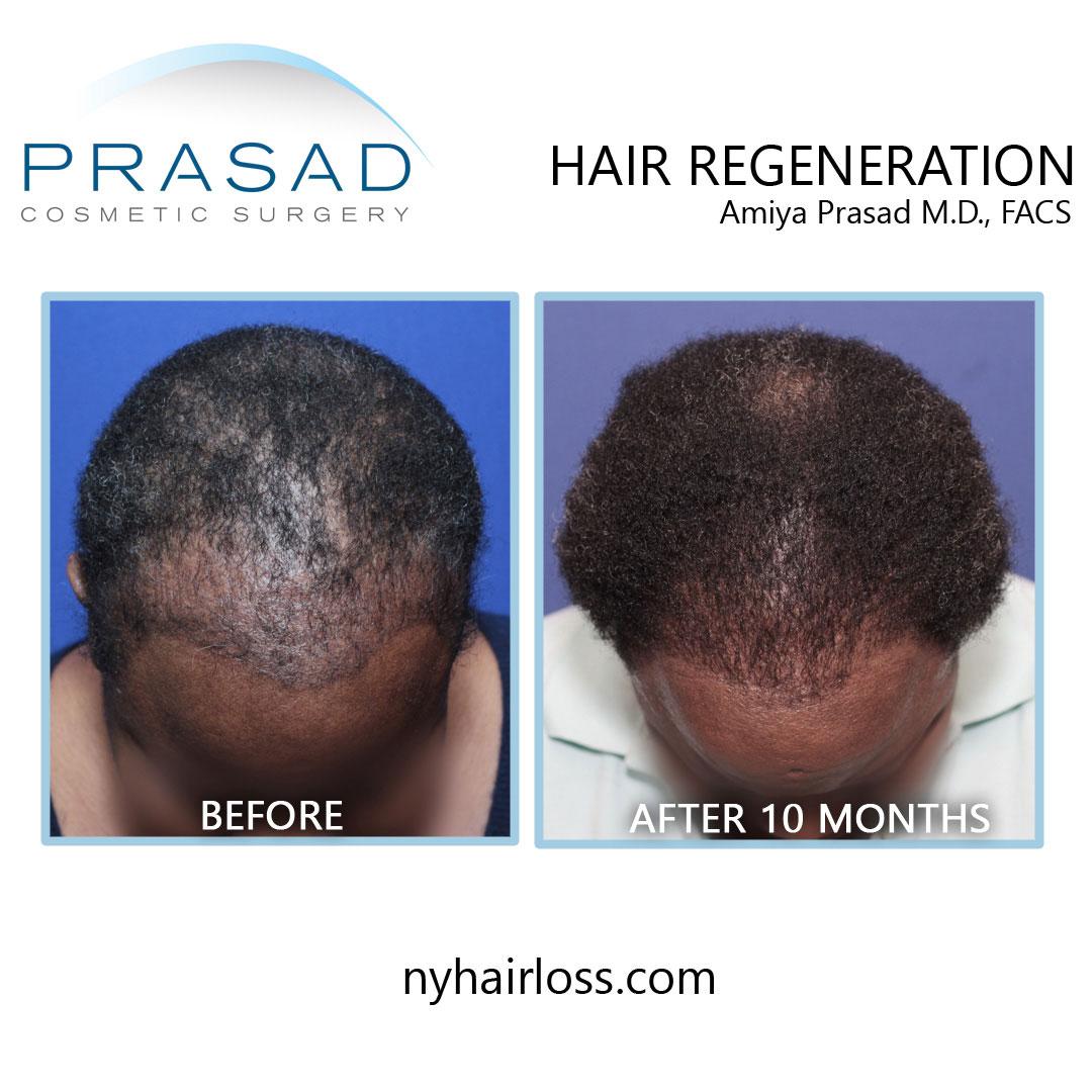 female hair loss treatment for african american hair