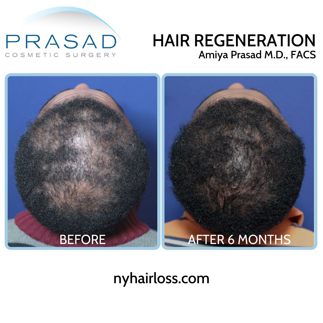black female hair loss treatment before and after