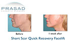 facelift recovery before and after