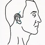 short scar facelift diagram
