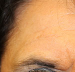 PRP for wrinkles after treatment