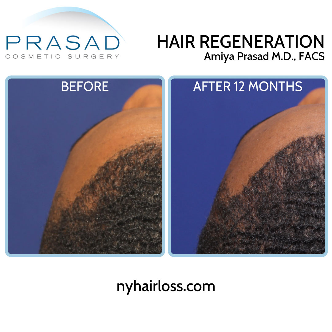 acell + PRP treatment for black hair before and after