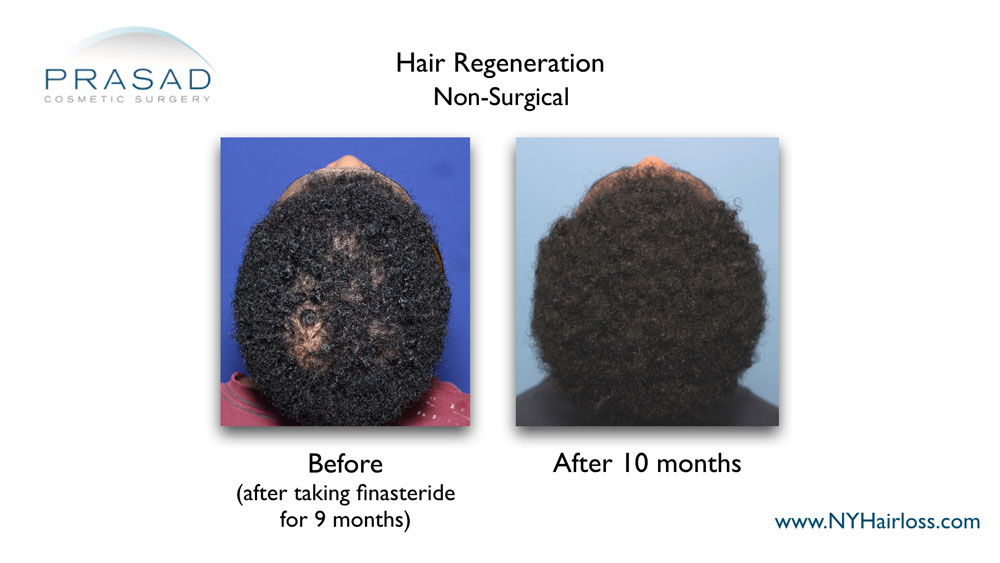 Acell PRP for hair loss before and after