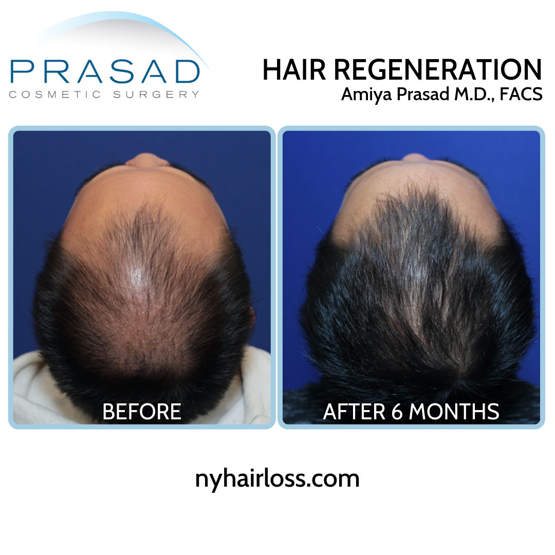 hair regrowth treatment for men before and after