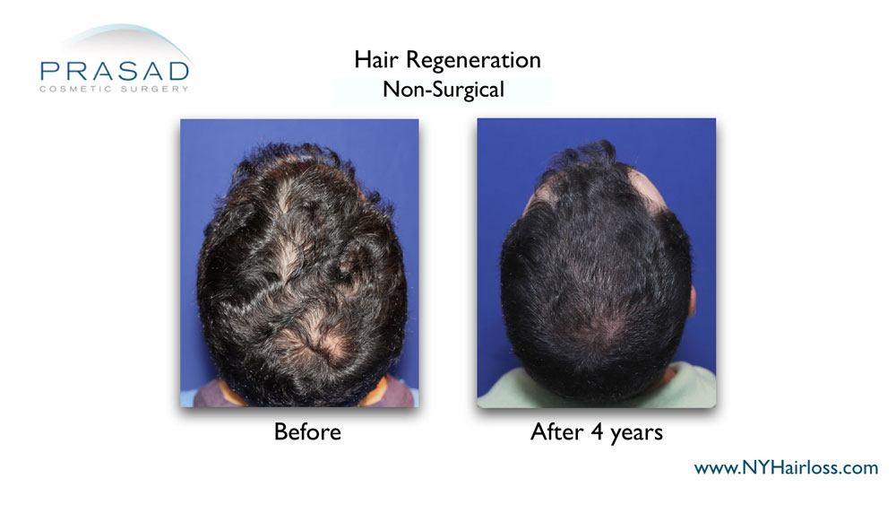 Hair Regeneration before and after 4 years results on male patient