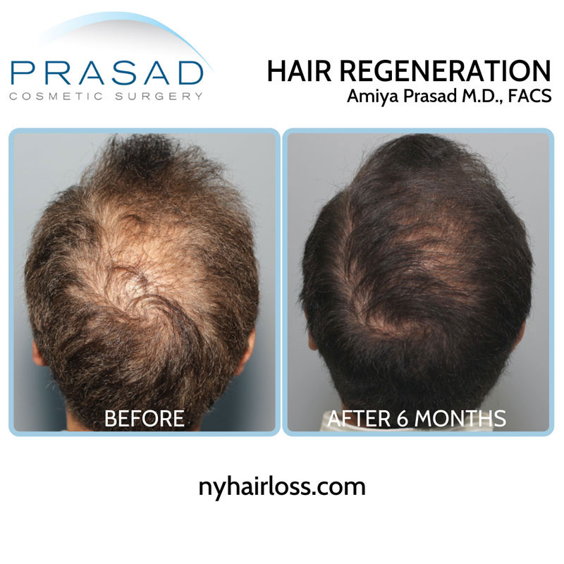 hair regeneration non-surgical hair loss treatment results before and after 6 months