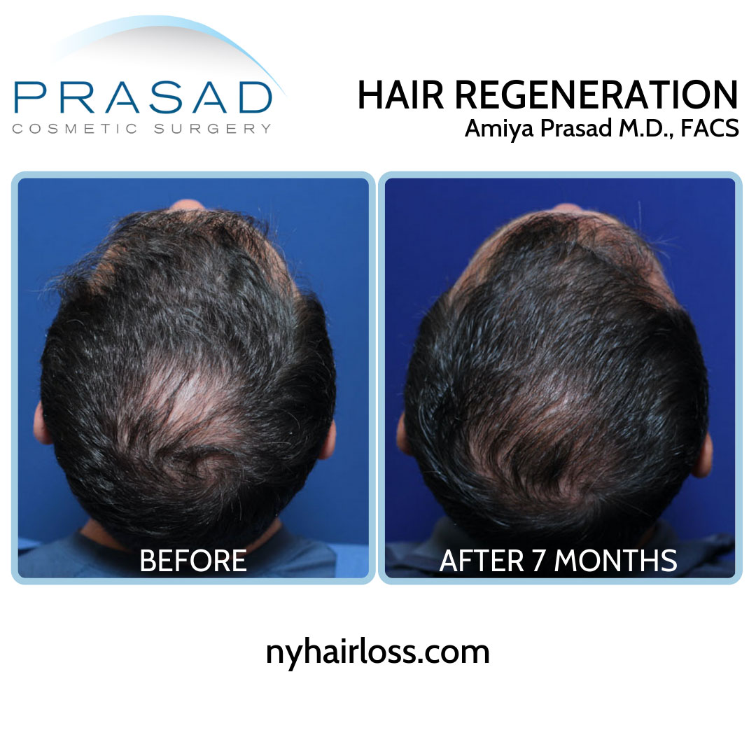 hair loss treatment for men before and after 7 months crown area