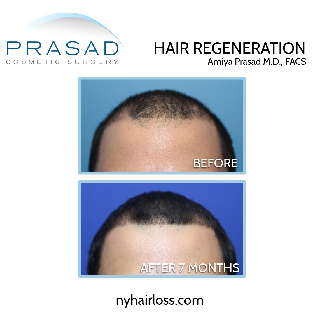 before and after male pattern baldness effective treatment