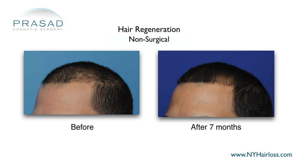 Hair Regeneration before and after 7 months left three quarters view