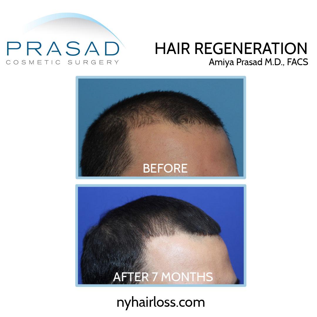 male pattern baldness treatment