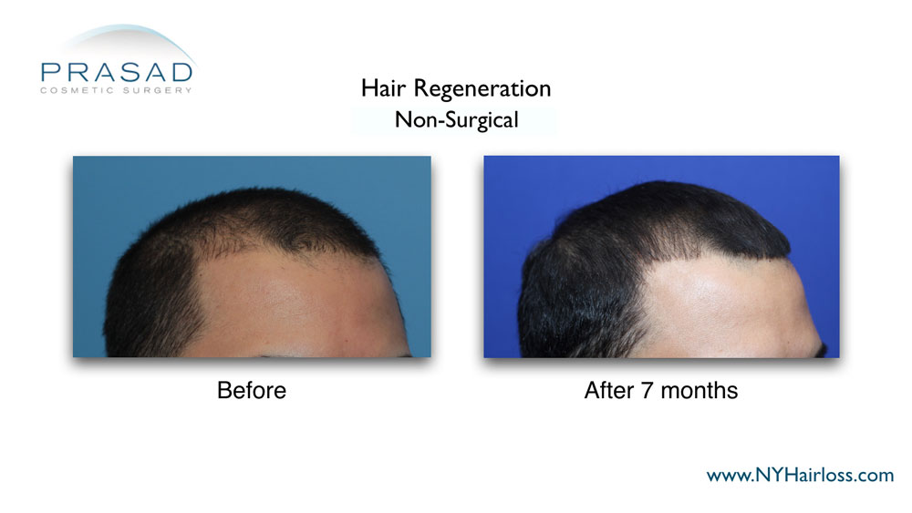 male pattern baldness treatment results