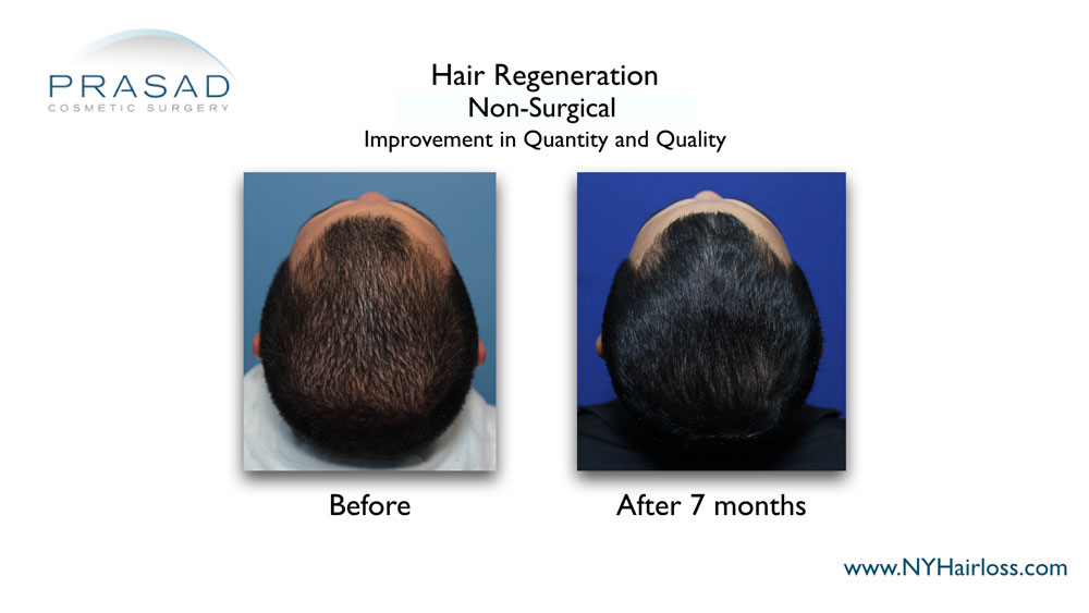 How to fix thinning hair male - before and after results