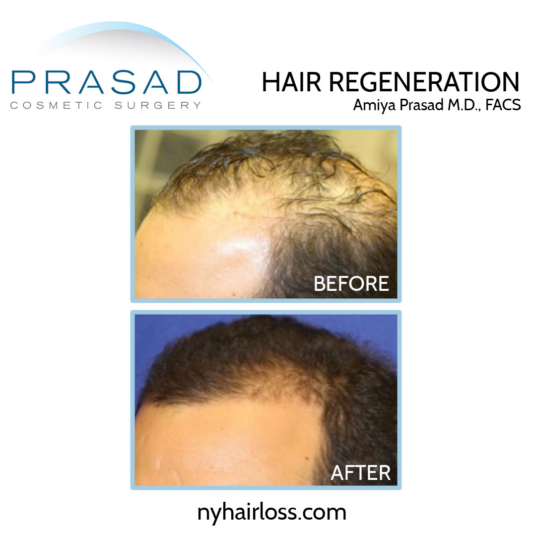 male hair loss treatment before and after results
