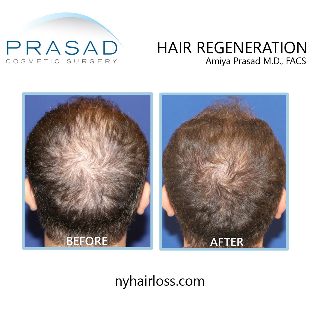 hair regeneration treatment before and after - male patient