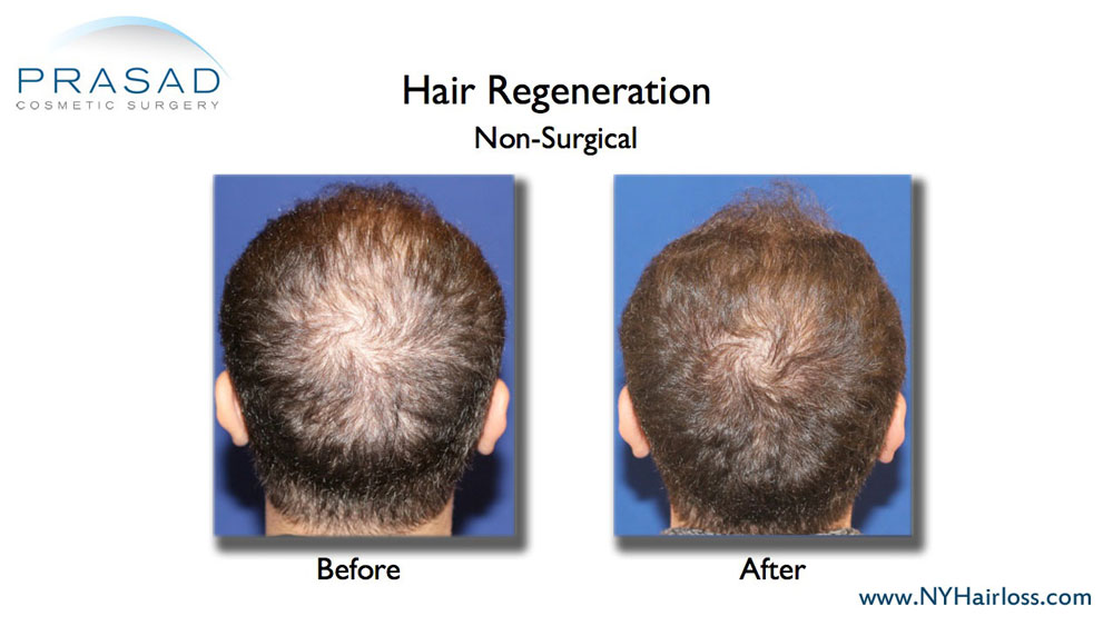 hair regeneration treatment before and after