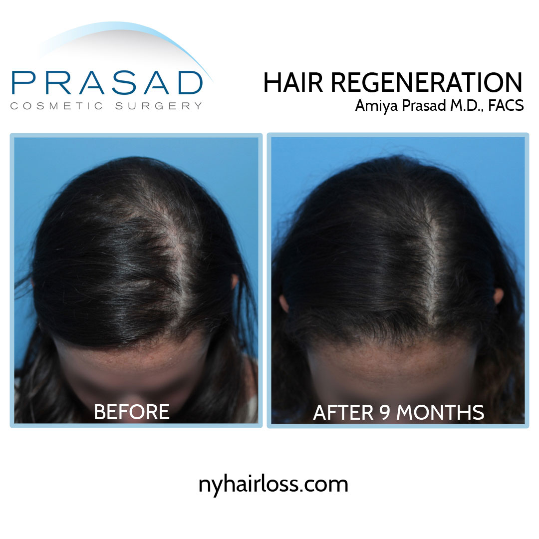 female pattern hair loss treatment before and after results