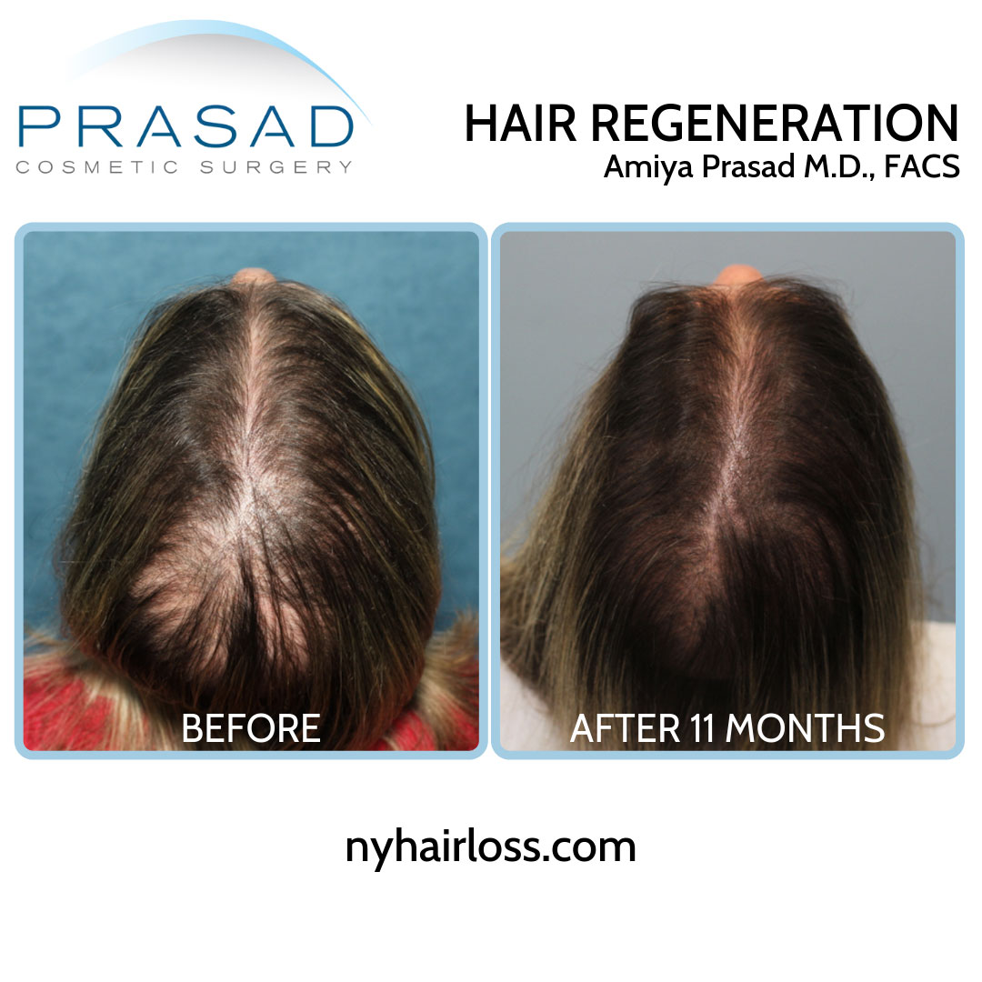 Hair Regeneration for female pattern hair loss before and after 11 months by Dr Amiya Prasad