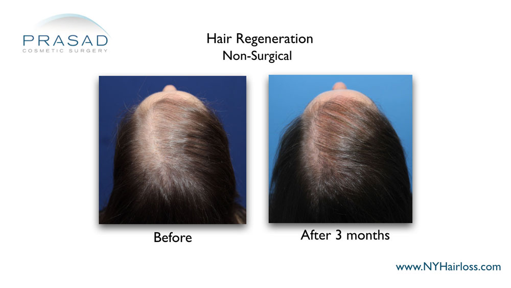hair regrowth treatment for women before and after