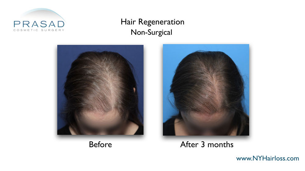 before and after hair loss treatment for women