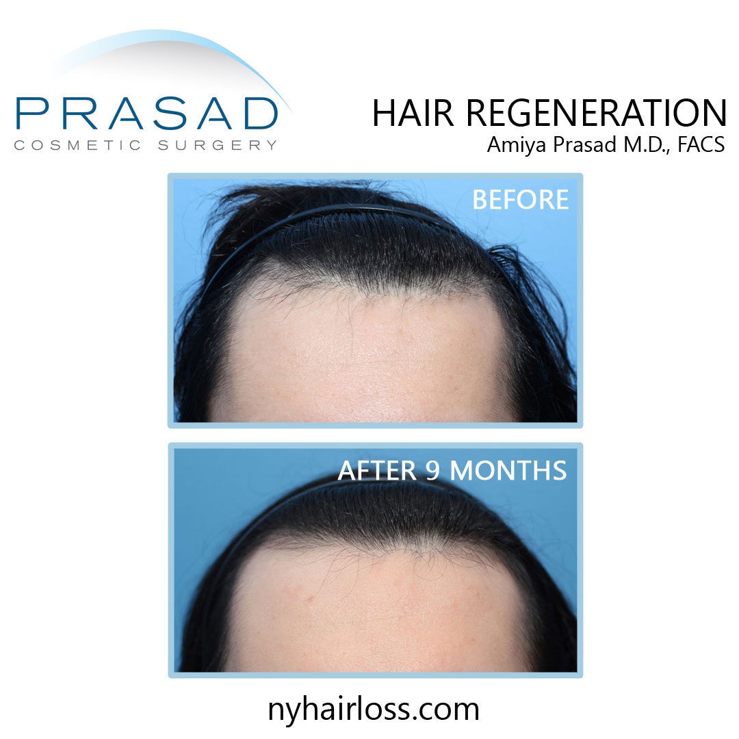 Losing hair at 25 male treatment before and after