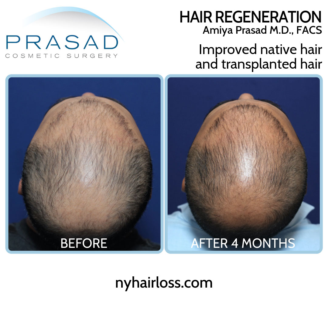 male pattern hair loss treatment before and after