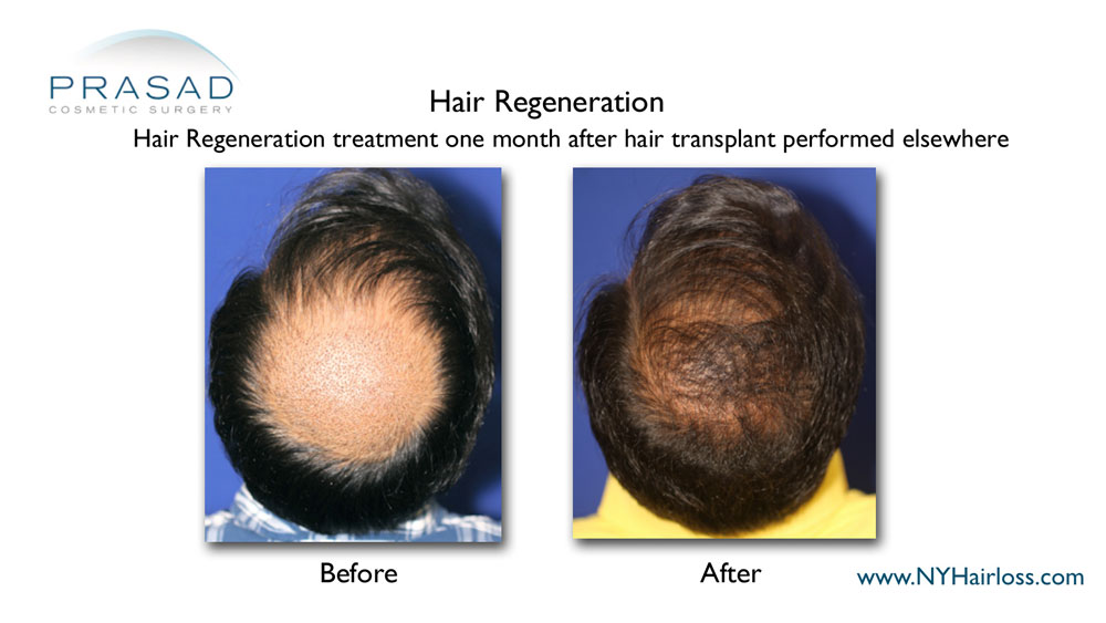 male hair regeneration treatment after hair transplant before and after results