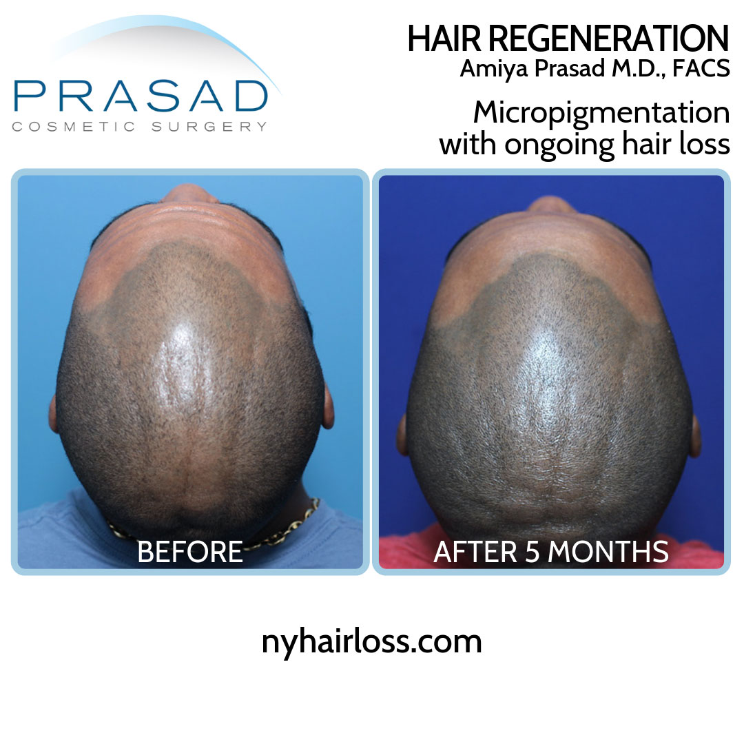 Hair Regeneration with improvement of scalp micropigmentation with ongoing hair loss top of front of scalp