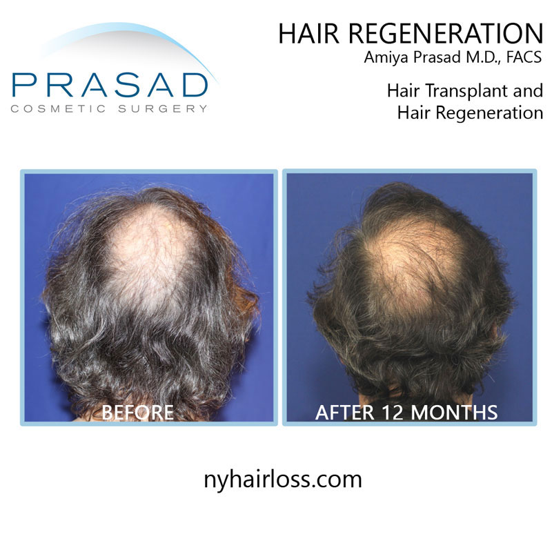 Hair Transplant and hair regeneration before and 12 months after recovery Time