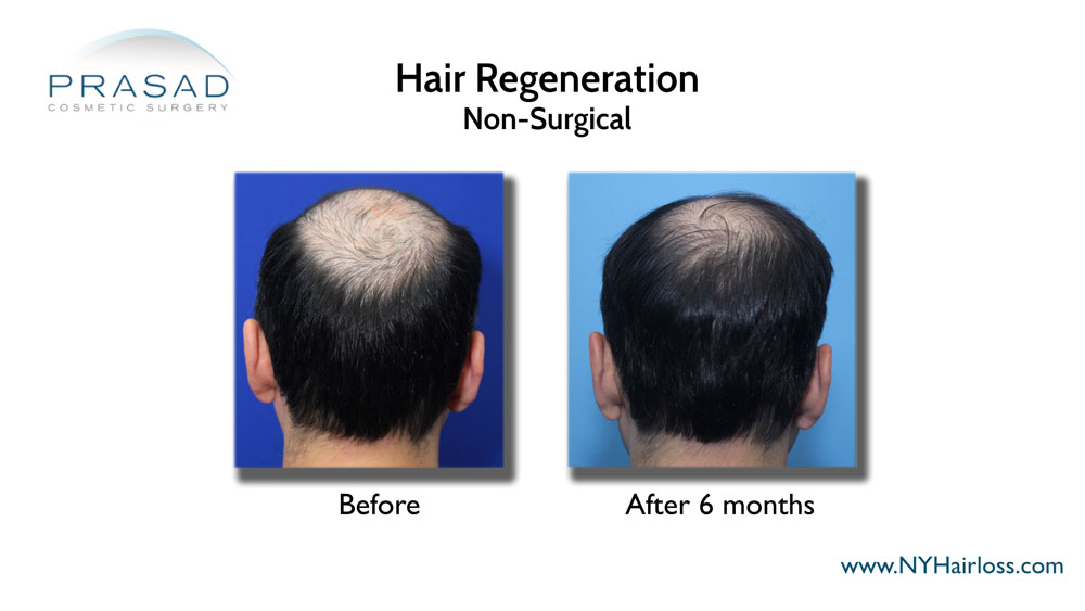 male non surgical hair loss treatment before and after 6 months performed by Dr Amiya Prasad