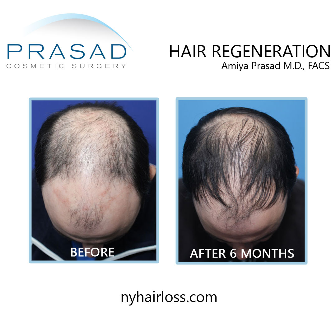 non surgical hair loss treatment before and after 6 months performed by Dr Amiya Prasad