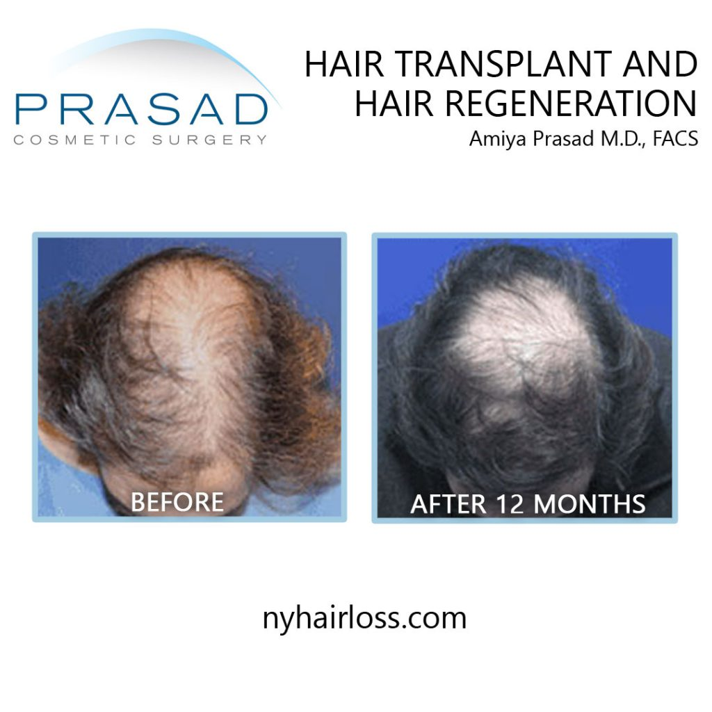 before and 12 months after hair transplant and hair regeneration - male patient top of the head view